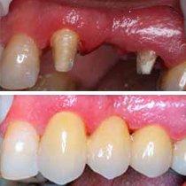 Dental bridges procedure