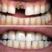 Dental Crowns Repair and Procedure