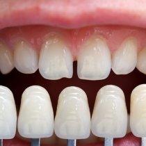 Dental veneer process and procedure